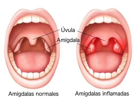 amigdalas - anginas