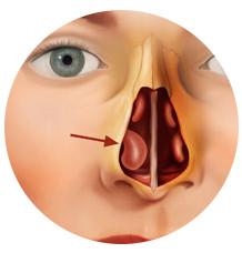 hipertrofia de los cornetes