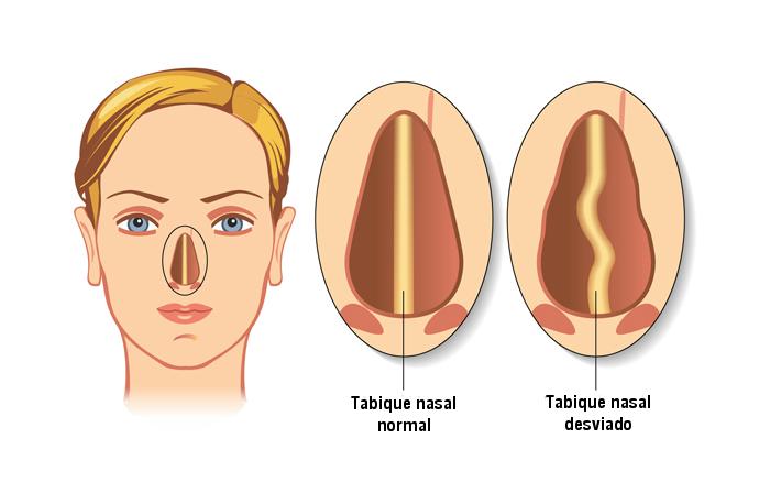 tabique desviado sintomas