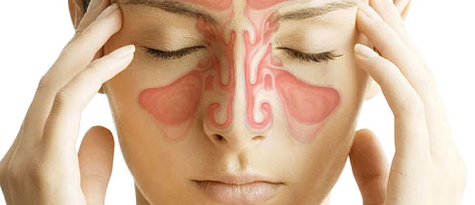 operacion de sinusitis