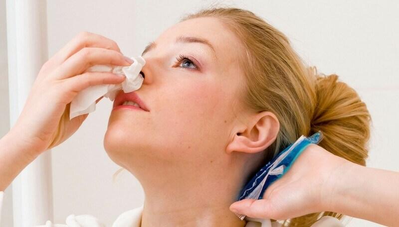Por que sale sangre de la nariz